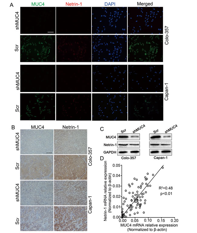 MUC4 regulates the expression of netrin-1 in PDAC.
