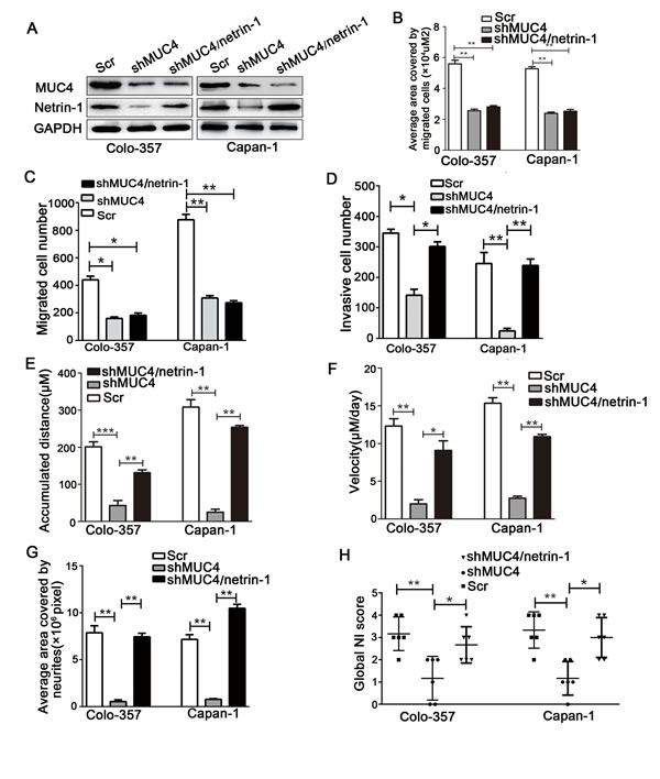 Exogenous overexpression of netrin-1 in shMUC4-treated cells restores their NI capability.