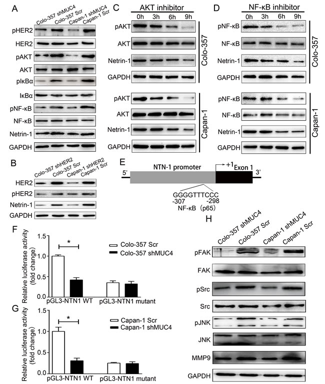 The downstream signaling pathways of MUC4 involved in the regulation of netrin-1 and in mediating the effect of shMUC4 on motility, migration and invasion.