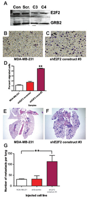 E2F2 knockdown in human breast cancer increases migration and lung colonization.