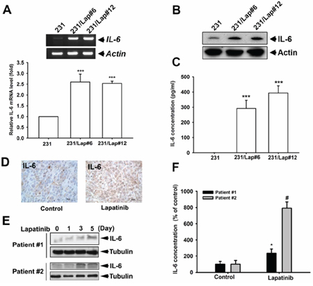 IL-6 expression was up-regulated by lapatinib in MDA-MB-231 TNBC cells.