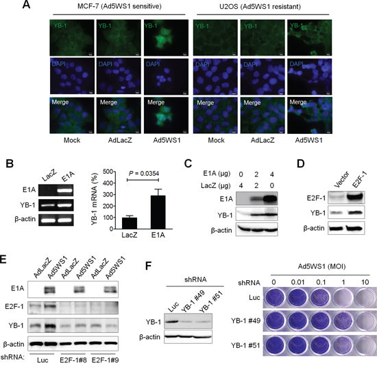 Adenovirus E1A and Ad5WS1 upregulates YB-1 expression, and knockdown of YB-1 decreases Ad5WS1-induced cytolysis in MCF-7 cells.