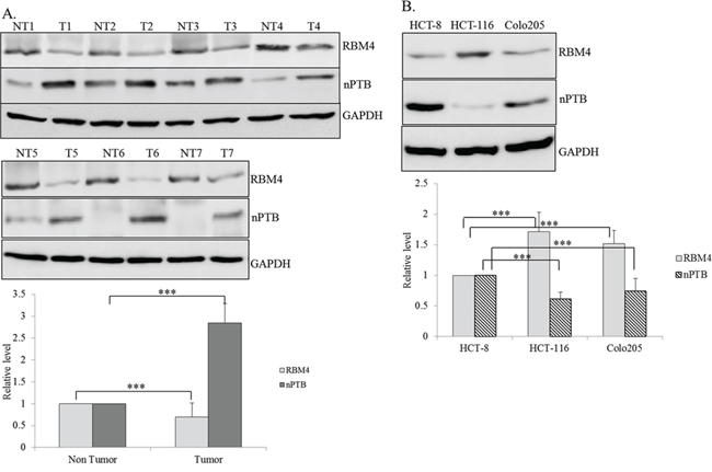 Differential expressions of RNA-binding motif 4 [RBM4] and neuronal polypyrimidine tract-binding protein [nPTB] in colorectal cancer [CRC] tissues and cell lines.