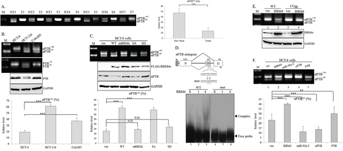 RNA-binding motif 4 [RBM4] enhances the skipping of neuronal polypyrimidine tract-binding protein [nPTB] exon 10 in colorectal cancer [CRC] cells.