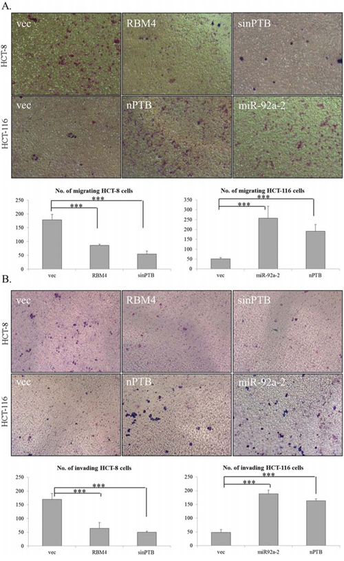 Expression profiles of RNA-binding motif 4 [RBM4] and neuronal polypyrimidine tract-binding protein [nPTB] influence the progression of colorectal cancer [CRC] cells.