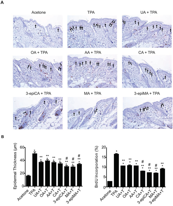 Effects of UA and related triterpenes from P. frutescens on TPA-induced epidermal hyperproliferation in female ICR mice.