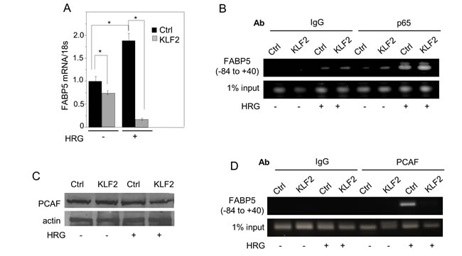 KLF2 suppresses FABP5 by interfering with the transcriptional activity of NFκB at the FABP5 promoter.