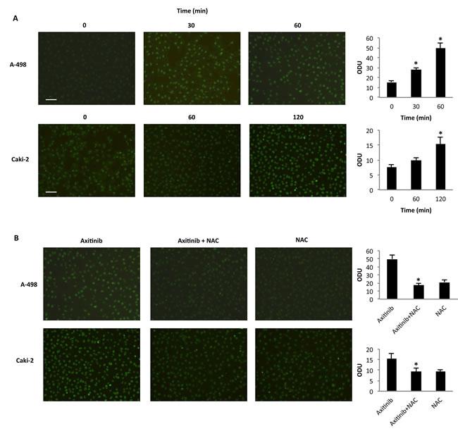 Axitinib triggers oxidative DNA damage in RCC cells.