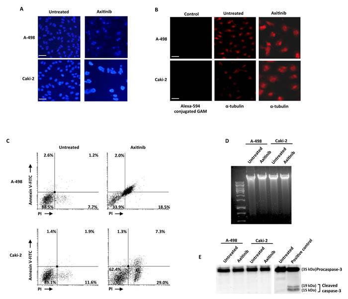 Axitinib induces mitotic catastrophe in RCC cells.