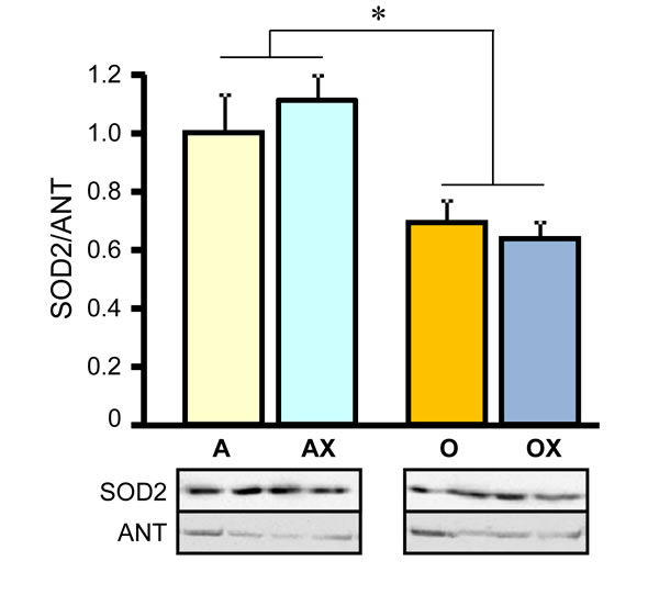 Protein levels of superoxide dismutase 2 (SOD2) in gastrocnemius mitochondria isolated from adult (A, AX) and old (O, OX) rats treated or untreated with XJB.