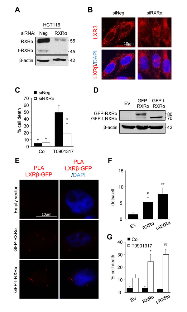 t-RXRα dictates LXRβ subcellular localization and colon cancer cell sensitivity.
