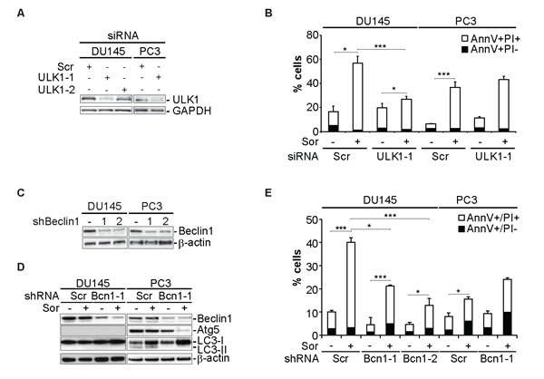 Sorafenib induces autophagy-dependent cell death in DU145 cells.