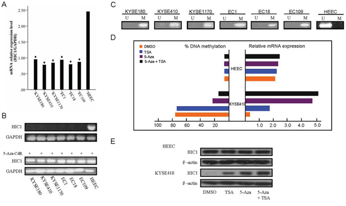 Expression of HIC1 is significantly reduced in ESCC cells.