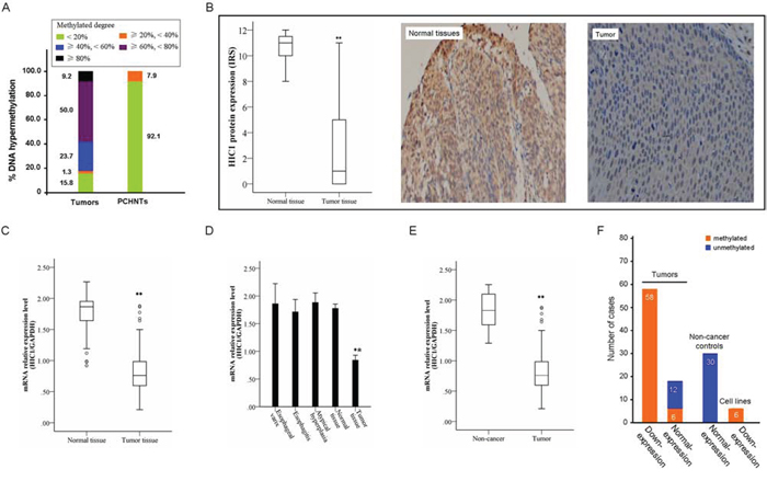 Representative results of HIC1 methylation and expression in primary ESCC.
