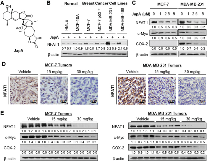 Effects of JapA on NFAT1 signaling pathway in breast cancer cells in vitro and in vivo.