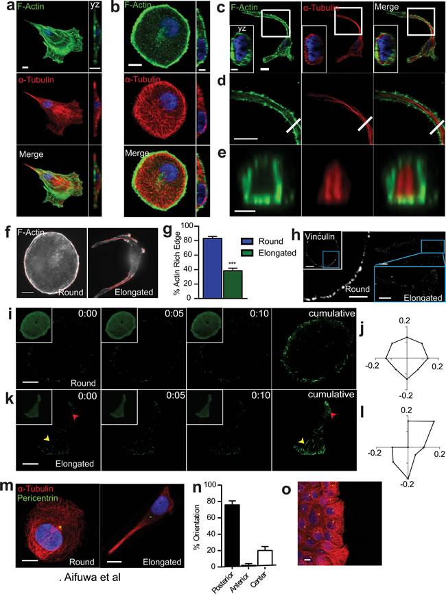 SASP-induced morphological change is accompanied by major cytoskeletal reorganization.