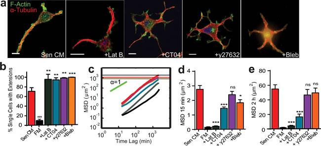 Role of RhoA/ROCK/myosin II in SASP-induced migration and morphology.