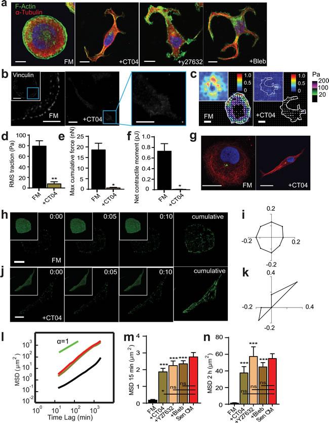 RhoA/ROCK/Myosin II inhibition recapitulates SASP-induced phenotype.
