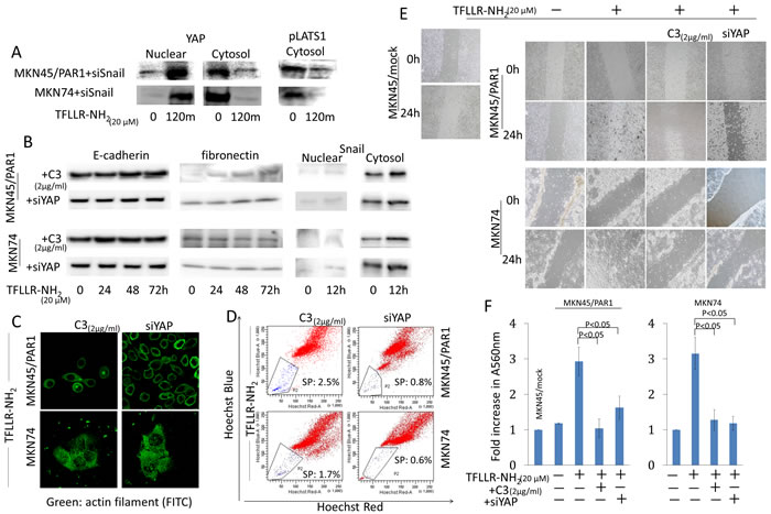 Hippo-YAP pathway caused by PAR1 activation promotes EMT, and ensures the preservation of cancer stem-like cell.