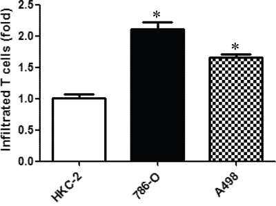 RCC cells can better attract CD4+ T cells than the non-malignant kidney cells.