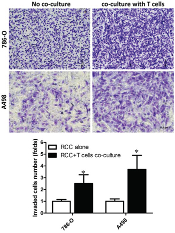 Recruited T cells could promote RCC cells invasion.