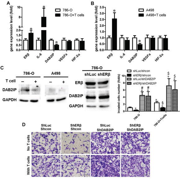 Recruited T cells can promote RCC cell invasion through ERβ/DAB2IP signal pathway.