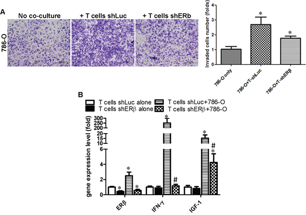 Co-culture of RCC cells with T cells can enhance IFN-γ and IGF production in T cells via increasing ERβ in T cells.