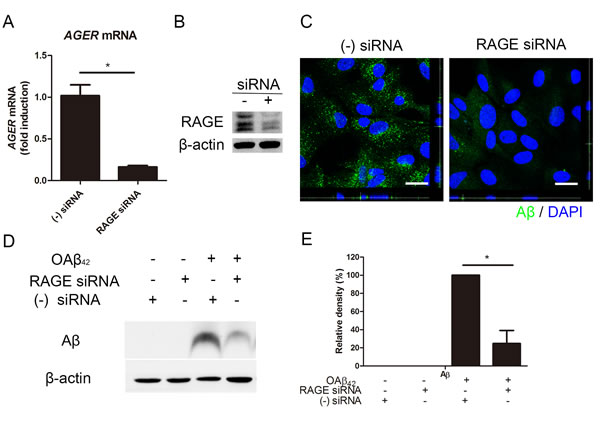 siRNA-mediated knockdown of RAGE suppresses Aβ uptake in RPE.