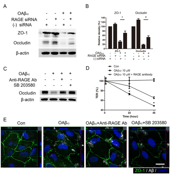 Blockade of RAGE inhibits intracellular Aβ-induced tight junction breakdown.