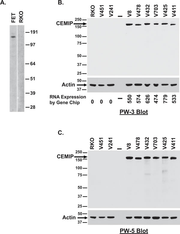 Detection of endogenous CEMIP protein in colon cancer cell lines.
