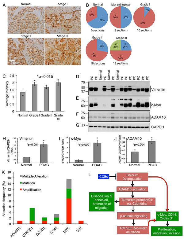 PDAC tumor tissue array show enhanced expression of ADAM10: