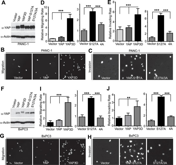 YAP promotes migration and invasion in a mitotic phosphorylation-dependent manner in pancreatic cancer cells.