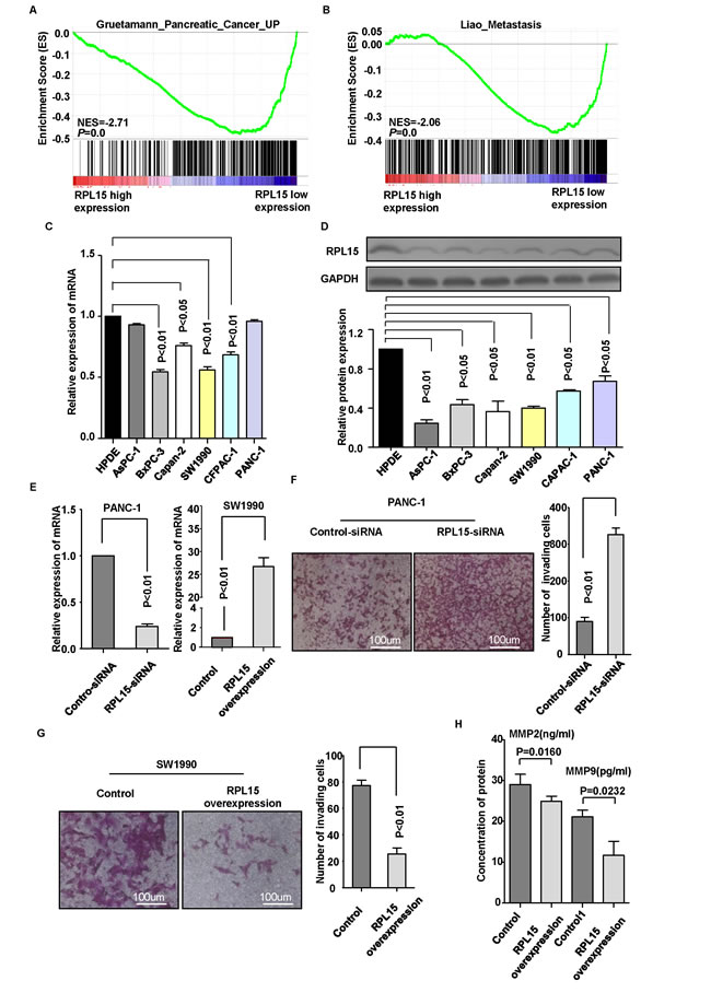 Overexpression of RPL15 inhibited pancreatic cancer cell invasion.