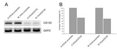 (A) siRNA of NECL-5 gene in both A375 and M14 cells was used to understand the effect on cell migration.