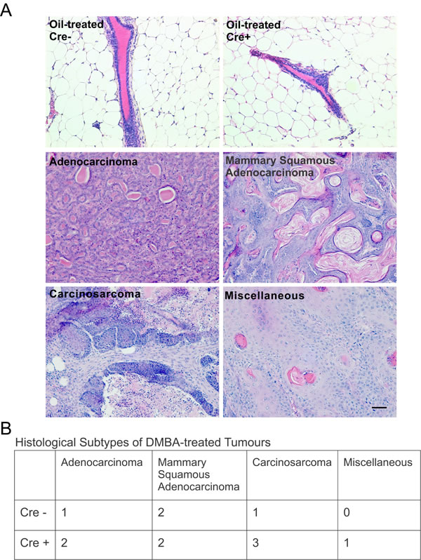 Cx26 knockout mice develop tumors of multiple histological subtypes similar to control mice.