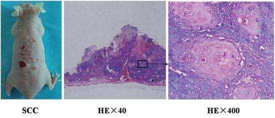 Histopathological analysis of UV-induced SCC tumors in the skin of mice.