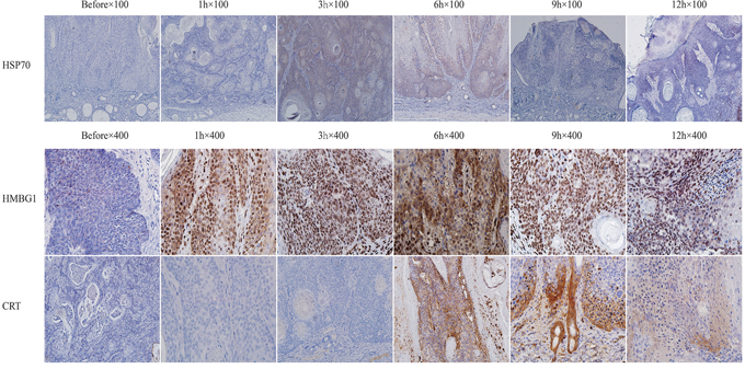 Expressions of HSP70, HMGB1, and CRT after ALA-PDT treatment in tumor tissue.