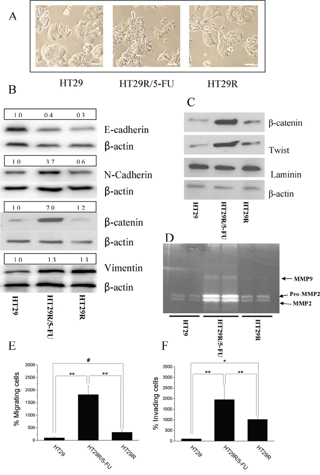 Chronic treatment with 20 μM 5-FU stimulates EMT in HT29R cells.