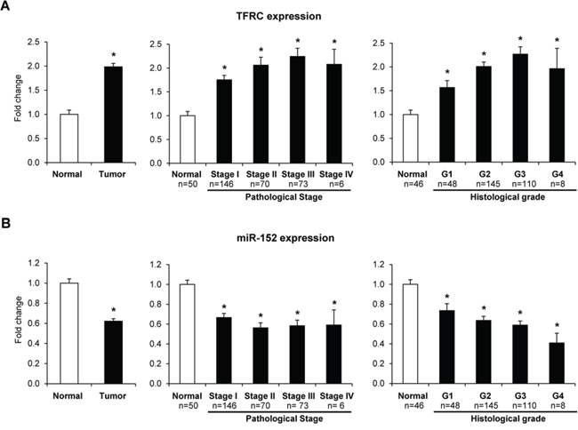 Expression of TFRC and miR-152 in human HCC samples.