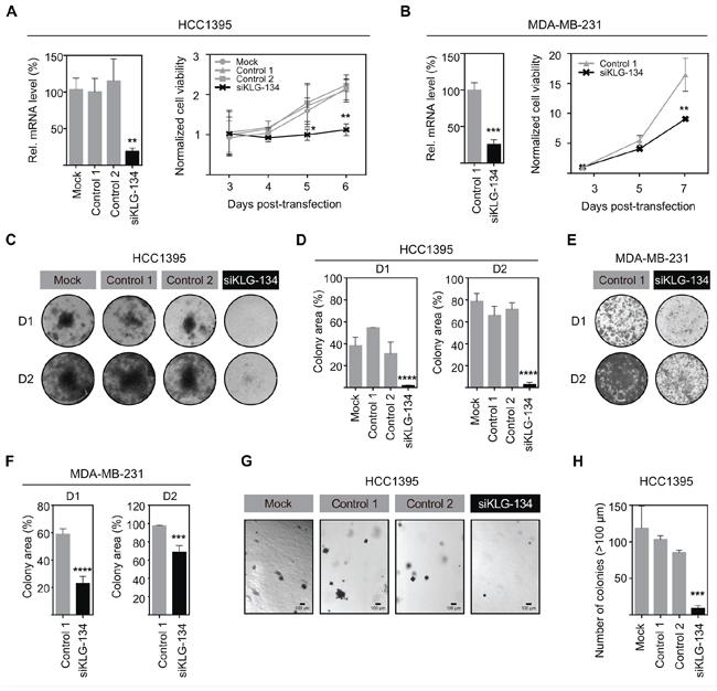 γKlotho is necessary for TNBC cell survival and clonogenic growth.