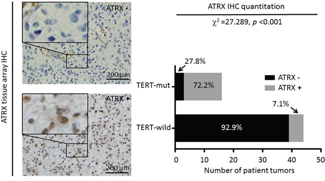 Differential expression of ATRX in gliomas.