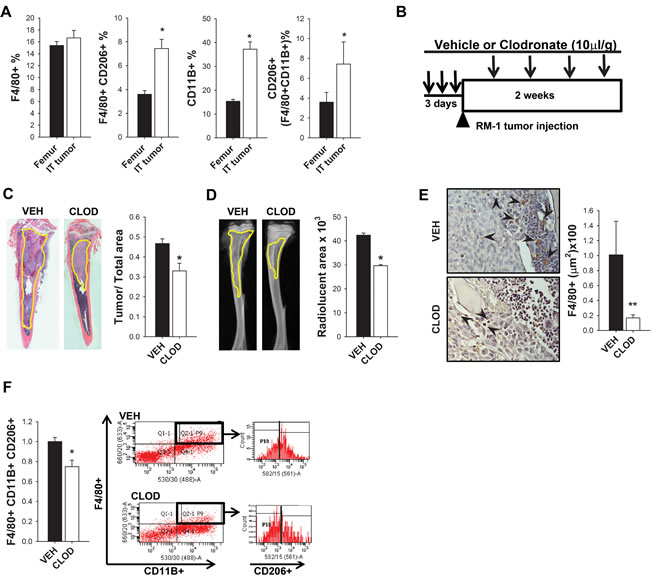 Impact of tumors and clodronate liposomes on macrophages and RM-1 tumor growth in bone.