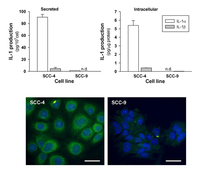 Secreted and intracellular levels of IL-1α and IL-1β by HNSCC cell lines.