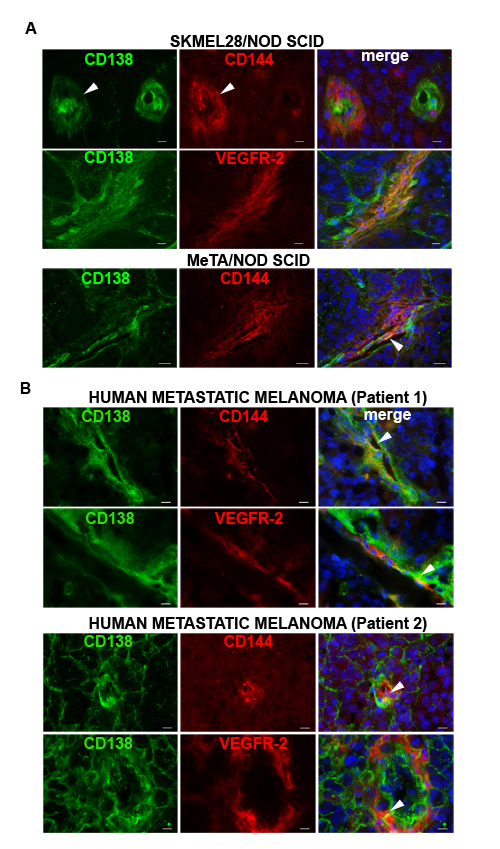 Syndecan 1 co-localizes with CD144 and VEGFR-2 in melanoma tissues.