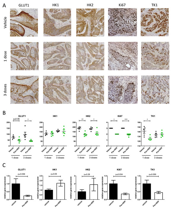GLUT1, HK1, HK2, Ki67 and TK1 staining in BxPC-3 xenograft tumors after Pan-HER treatment.