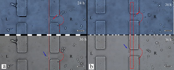 The macrophage cell migration in different lateral microchannels.