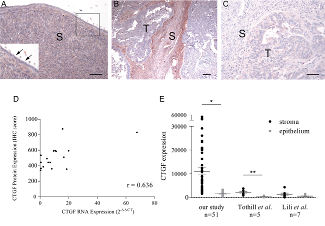 Immunohistochemical staining of CTGF on formalin-fixed tissue sections.