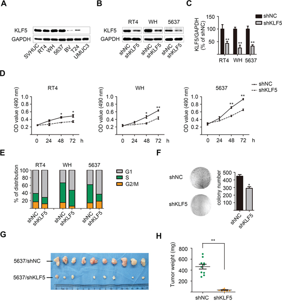 Lentivirus-mediated KLF5 knockdown suppresses the proliferation of bladder cancer cells in vitro and in vivo.