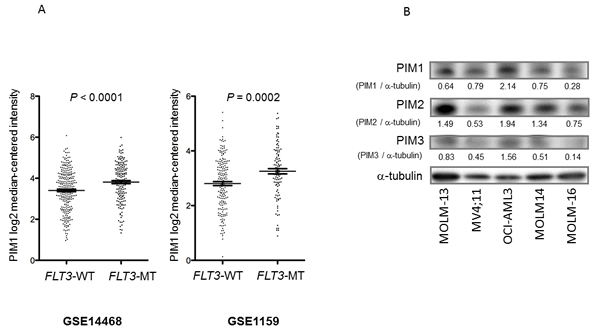 FLT3 mutations associated with high levels of