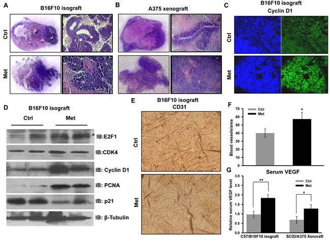 Metformin promotes melanoma tumor growth by inducing angiogenesis and by inhibiting necrosis.
